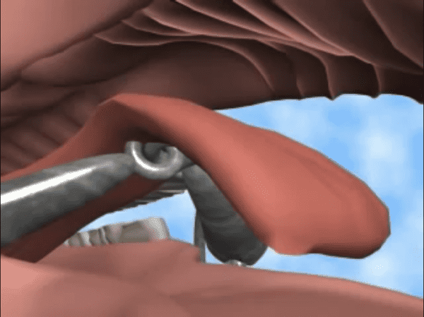 A 3D rendering of a horse covering a metal bit with his tongue in order to escape pain.